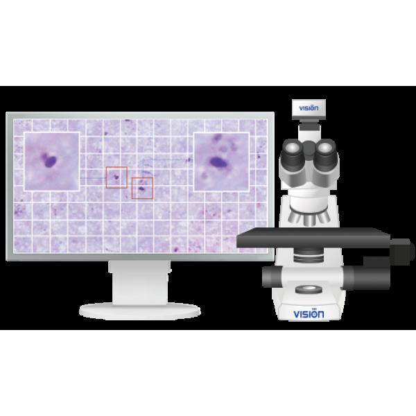 Система для диагностики малярии Vision Hema® Malaria 4Pro