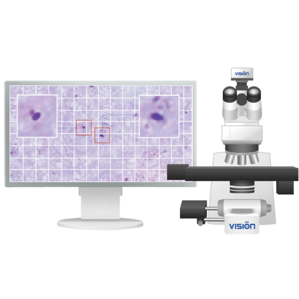 Система для диагностики малярии Vision Hema® Malaria 8Pro